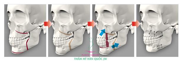 Phẫu thuật hàm hô được thực hiện như thế nào